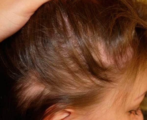 фото розовый лишай на голове