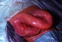 Средства от паразитов в организме человека